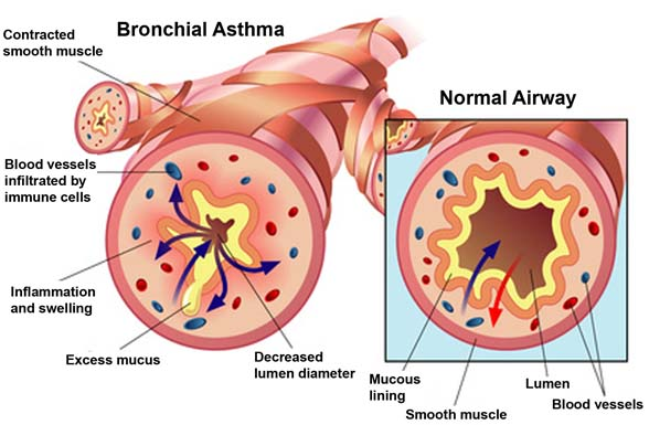 asthmatic lungs